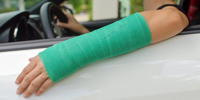 Vrouwen in de auto met gebroken arm